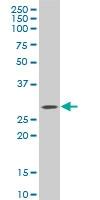 CTRP1 Antibody | 4A10 gallery image 1