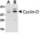 Cyclin-O Antibody thumbnail image 1