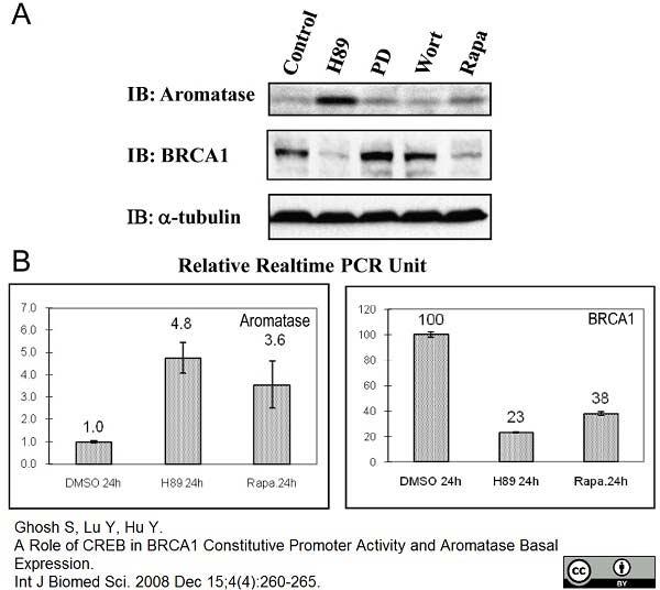 Cytochrome P450 Aromatase Antibody | H4 gallery image 2