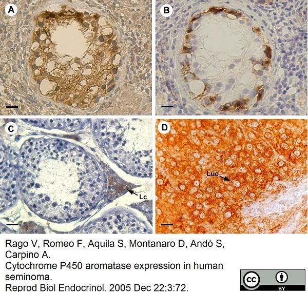 Cytochrome P450 Aromatase Antibody | H4 gallery image 3