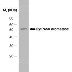 Cytochrome P450 Aromatase Antibody | H4 gallery image 1