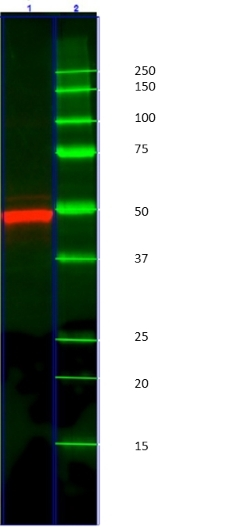 Cytokeratin 14 Antibody   AbD03759 gallery image 2