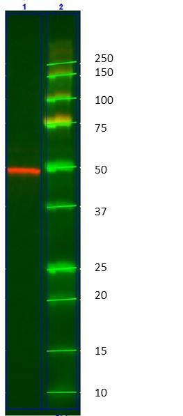Cytokeratin 14 Antibody   AbD03759 gallery image 1
