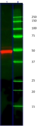 Cytokeratin 14 Antibody | AbD03759 gallery image 2