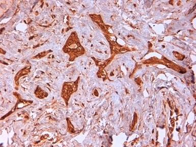 Cytokeratin 14 Antibody | LL002 gallery image 3