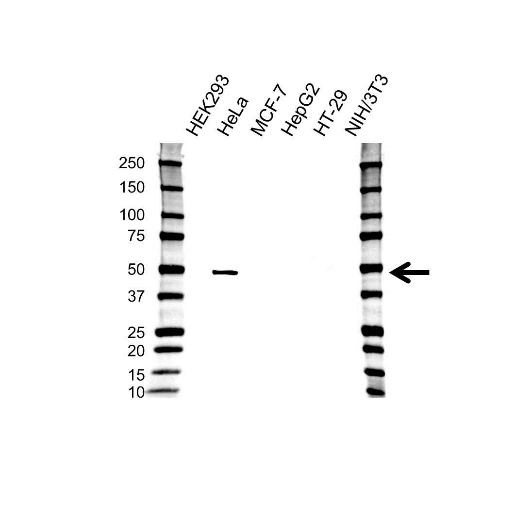 Cytokeratin 17 Antibody (PrecisionAb<sup>TM</sup> Antibody) gallery image 1