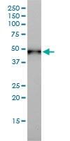 Cytokeratin 17 Antibody | 2D4-1G9 gallery image 3