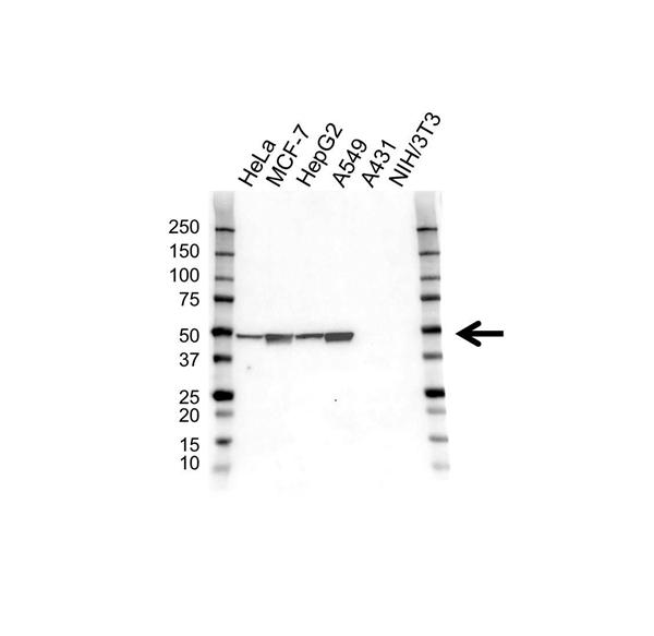 Cytokeratin 18 Antibody (PrecisionAb<sup>TM</sup> Antibody) gallery image 1