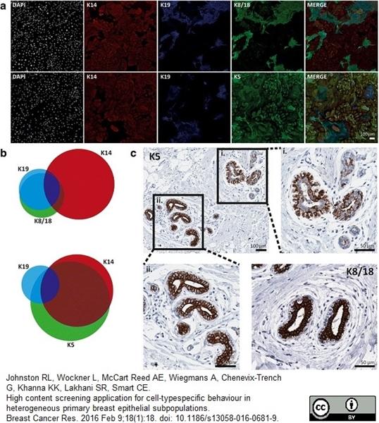 Cytokeratin 19 Antibody | A53-B/A2 gallery image 5