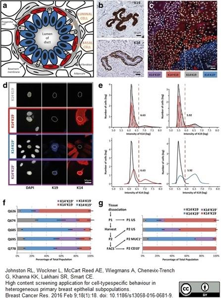 Cytokeratin 19 Antibody | A53-B/A2 gallery image 4