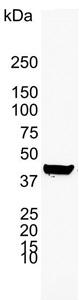 Cytokeratin 19 Antibody | A53-B/A2 gallery image 2