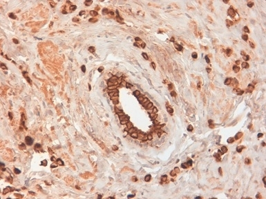 Cytokeratin 19 Antibody | BA17 gallery image 2