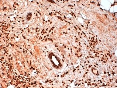 Cytokeratin 19 Antibody | BA17 gallery image 1