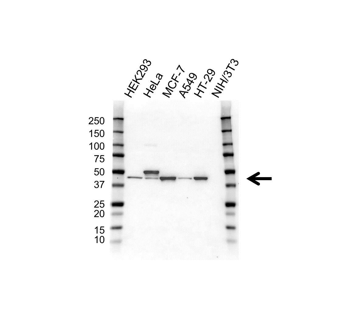 Cytokeratin 20 Antibody (PrecisionAb<sup>TM</sup> Antibody) gallery image 1