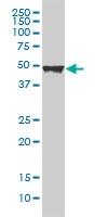Cytokeratin 20 Antibody | 2G3-1C8 gallery image 1
