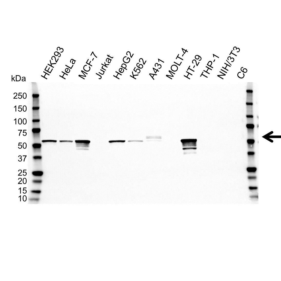 Cytokeratin 5 Antibody (PrecisionAb<sup>TM</sup> Antibody) gallery image 1