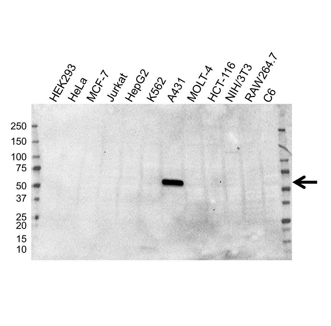 Cytokeratin 5 Antibody (PrecisionAb<sup>TM</sup> Antibody) | OTI1C7 gallery image 1