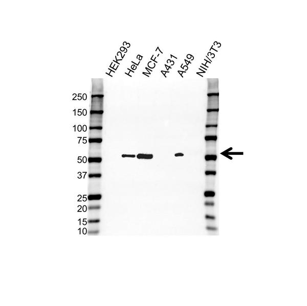Cytokeratin 8 Antibody (PrecisionAb<sup>TM</sup> Antibody) gallery image 1