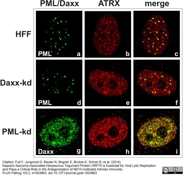 DAXX Antibody | DAXX-01 gallery image 3