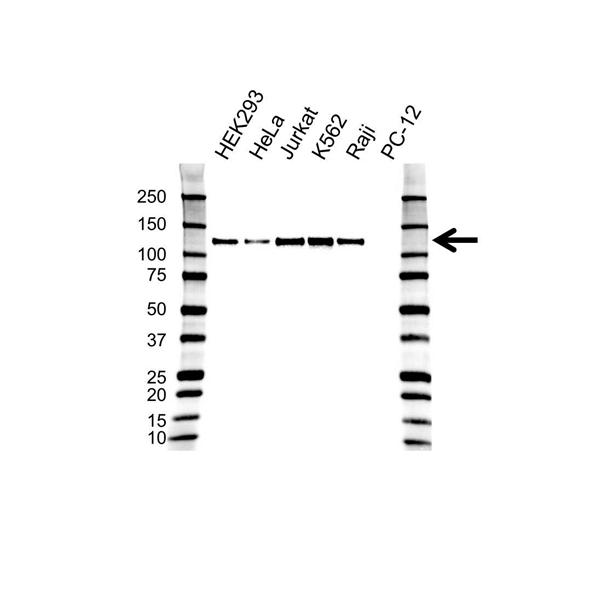 DAXX Antibody (PrecisionAb<sup>TM</sup> Antibody) gallery image 1