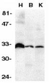DcR3 Antibody gallery image 1