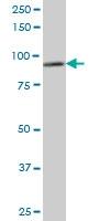 DDX1 Antibody | 4F6 gallery image 1