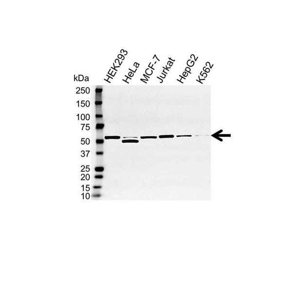 DDX6 Antibody (PrecisionAb<sup>TM</sup> Antibody) gallery image 1