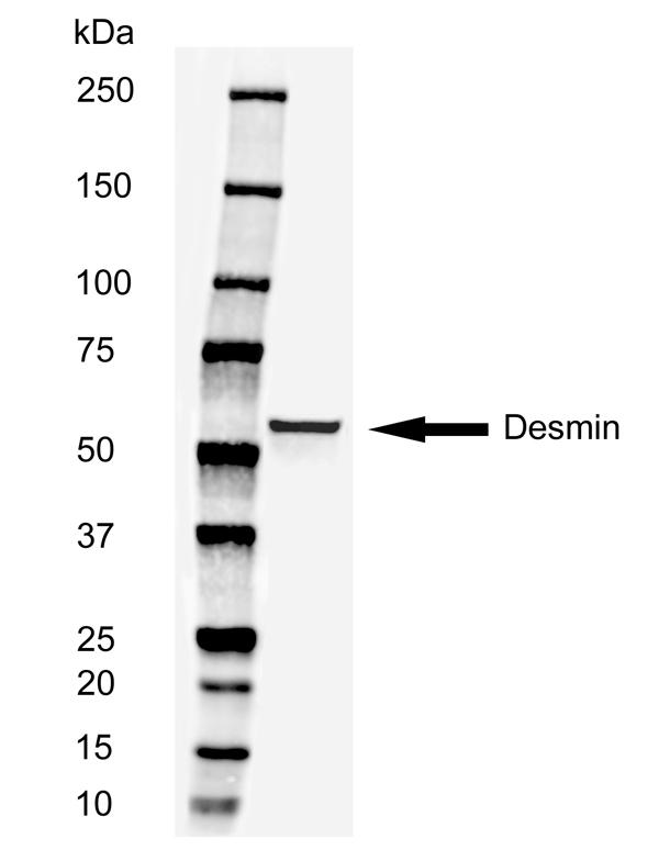 Desmin Antibody | 3744 thumbnail image 2