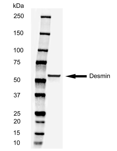 Desmin Antibody | 3744 gallery image 2