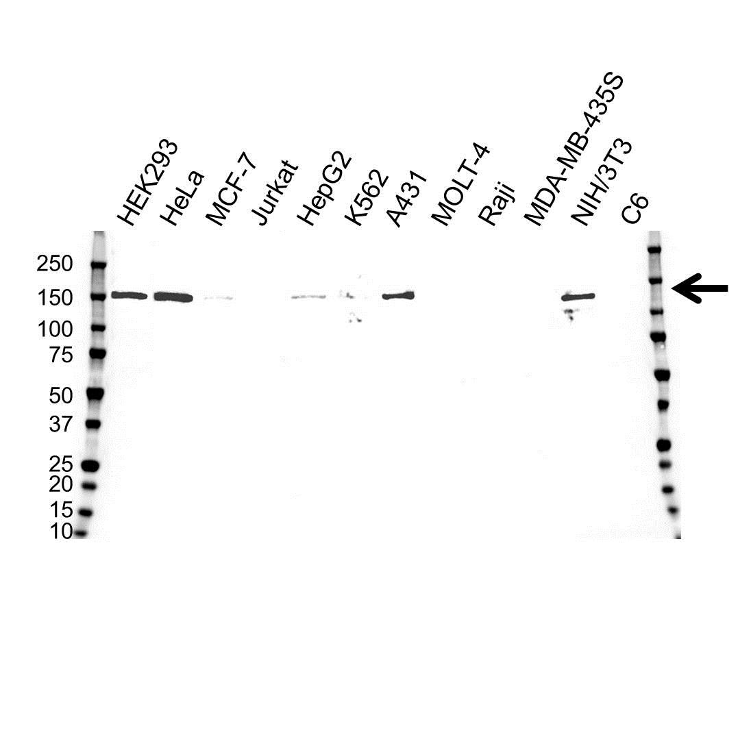 Desmoglein 2 Antibody (PrecisionAb<sup>TM</sup> Antibody)   10D2 gallery image 1