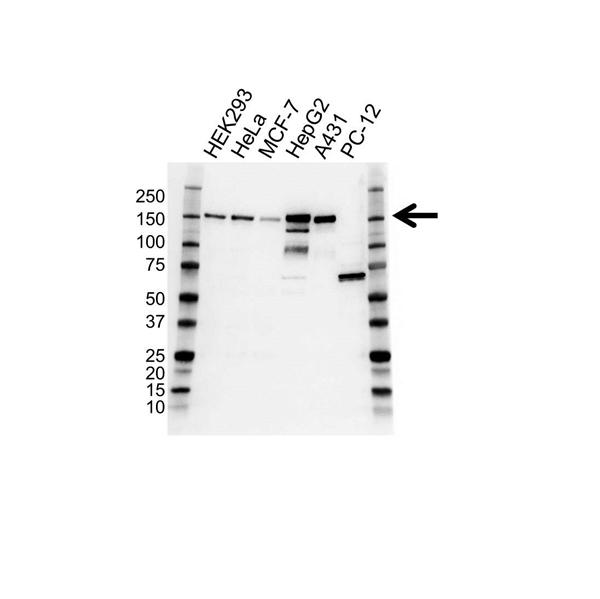 Pro Desmoglein 2 Antibody (PrecisionAb<sup>TM</sup> Antibody) | 19B9 gallery image 1