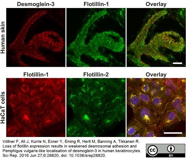 Desmoglein 3 Antibody | 5G11 gallery image 13
