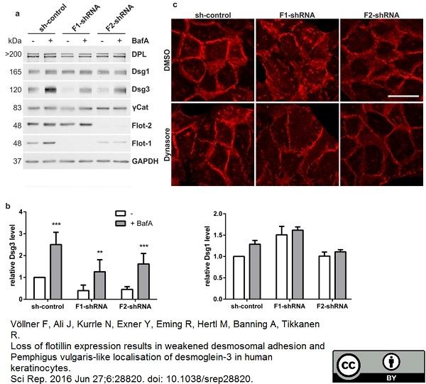 Desmoglein 3 Antibody | 5G11 gallery image 9