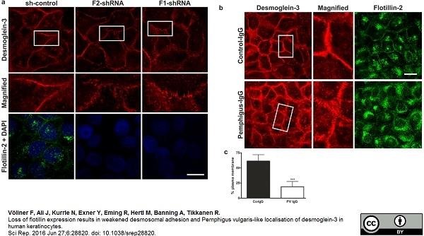 Desmoglein 3 Antibody | 5G11 gallery image 3