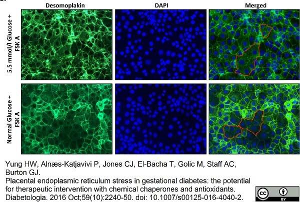 Desmoplakin 1/2 Antibody   DP-2.15 gallery image 3