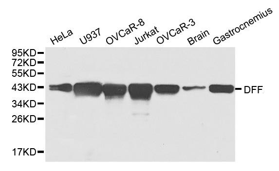 DFF-45 Antibody gallery image 1