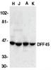 DFF Antibody thumbnail image 1