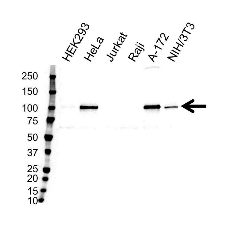 Disabled Homolog 2 Antibody (PrecisionAb<sup>TM</sup> Antibody) gallery image 1