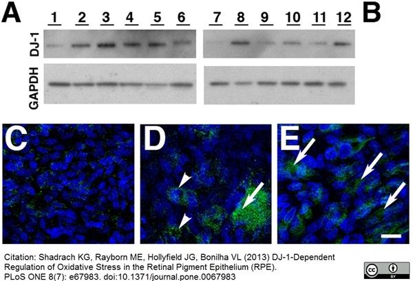 DJ-1 Antibody | 3055 gallery image 3