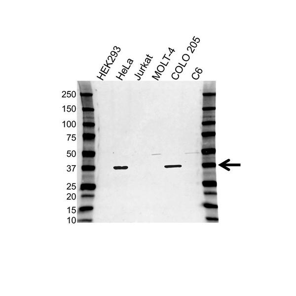 DNAJB6 Antibody (PrecisionAb<sup>TM</sup> Antibody) gallery image 1
