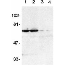 DR6 Antibody gallery image 1