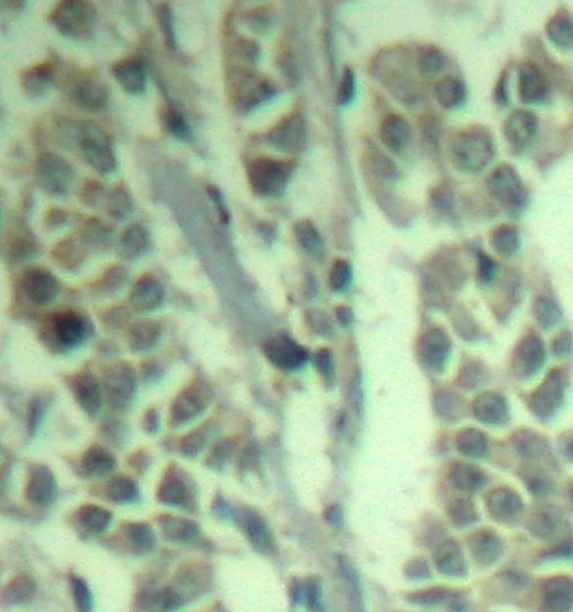 E3 UBIQUITIN-PROTEIN Ligase  CBL (pTyr700) Antibody gallery image 2