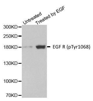EGF R (pTyr1068) Antibody gallery image 1
