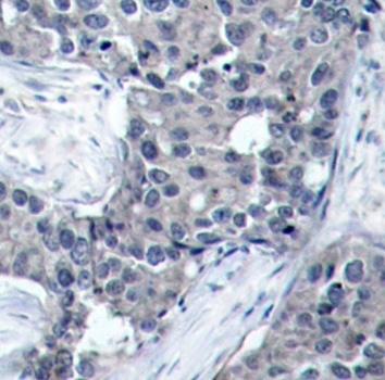 EIF4E (pSer209) Antibody gallery image 2