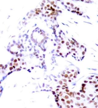 ELK-1 (pSer389) Antibody gallery image 2