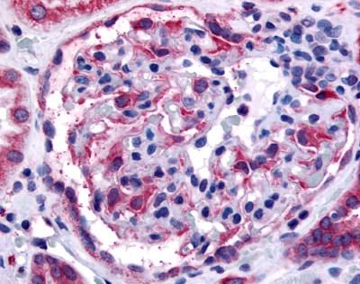 EPHA4 Antibody gallery image 1