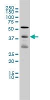 EPHA6 Antibody | 2H2 gallery image 1