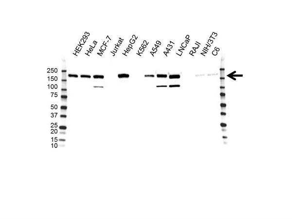 ErbB2 Antibody (PrecisionAb<sup>TM</sup> Antibody) | OTI4F10 gallery image 1