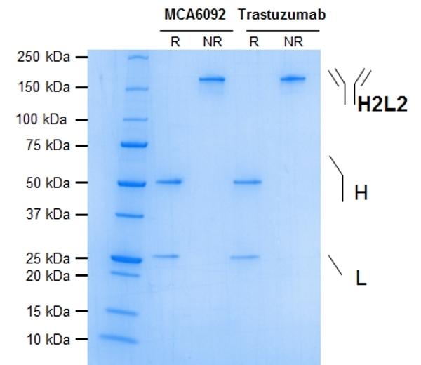 ErbB2 Antibody | 4D5-8 gallery image 1