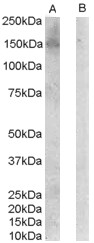 ErbB3 Antibody gallery image 1